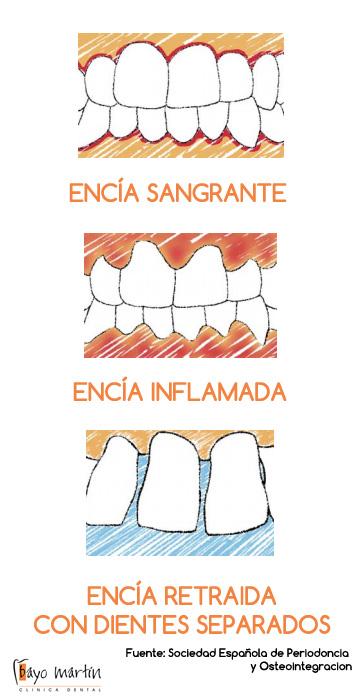 7-senales-alarma-encia-enferma1.jpg