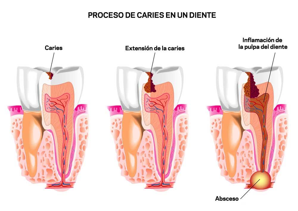 proceso-caries1.jpg