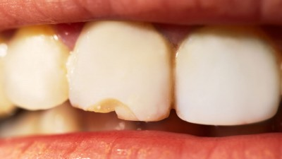 ¿Qué hago si mi peque se rompe un diente?