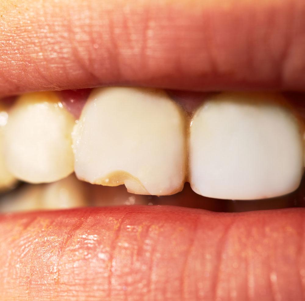 fractura-diente.jpg