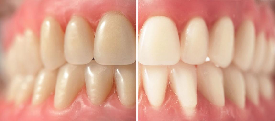 blanqueamiento_dental_bayomartin.jpg