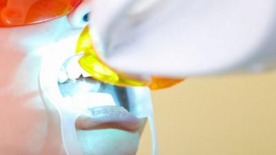 6 errores que no debes cometer si decides hacerte un blanqueamiento dental profesional