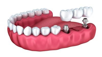 Implantología oral (II): «Un implante dental requiere los mismos cuidados que un diente natural»