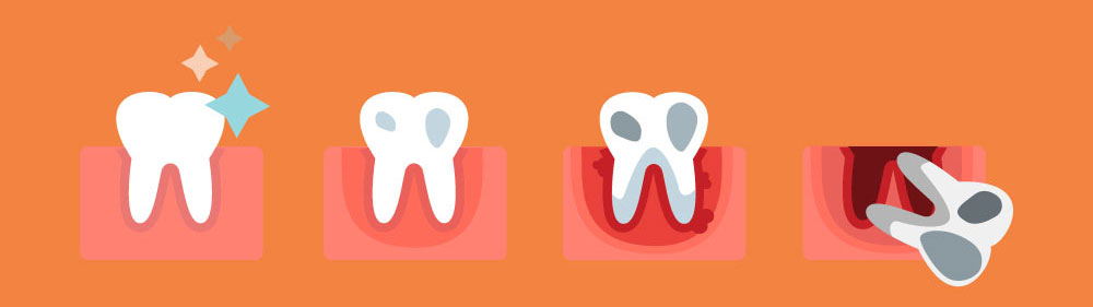 gingivitis-a.jpg