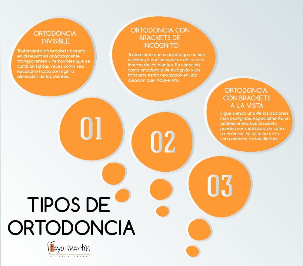 TIPOS_ORTODONCIA.jpg