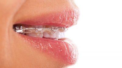 Tipos de ortodoncia según su visibilidad