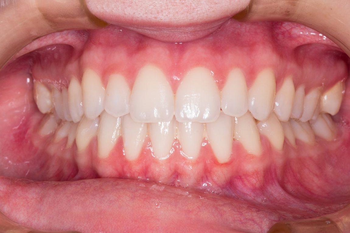 apiñamiento-dental.jpg