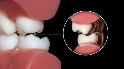 De qué hablamos cuando en odontología decimos maloclusión