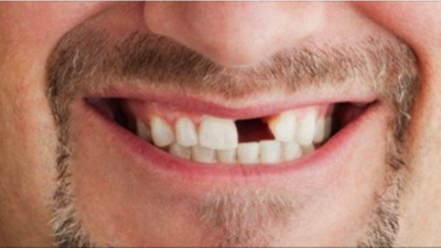 Pérdida de diente por un traumatismo, ¿qué hay que hacer?
