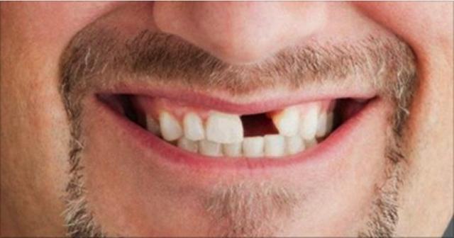 perdida-diente.png