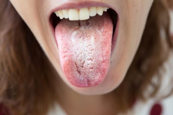 hongos-en-la-boca.jpg