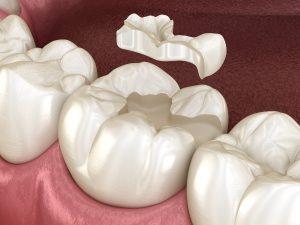 Incrustraciones dentales