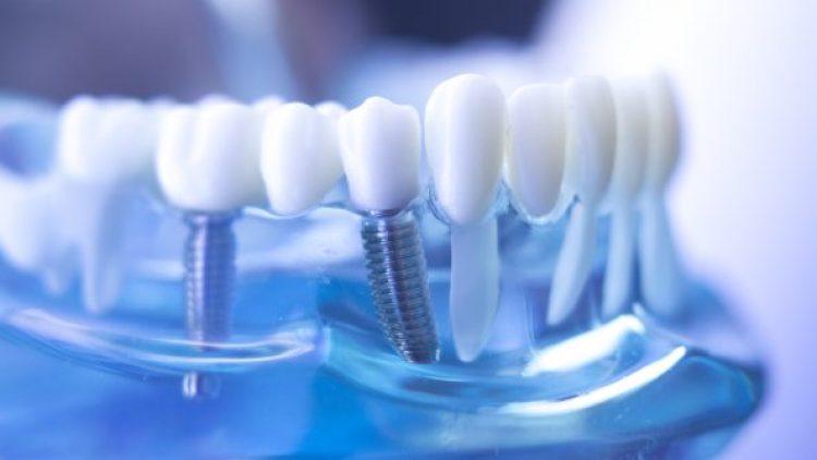 Prótesis sobre implantes: ¿qué son y tipos hay?