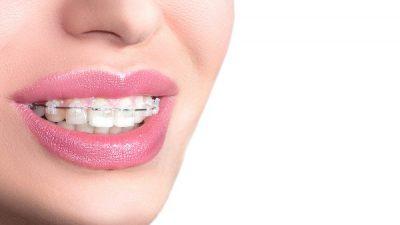 Ortodoncia invisible en pacientes adultos