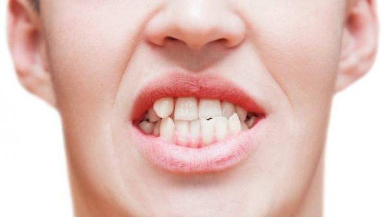 Apiñamiento dental ¿cómo corregirlo?